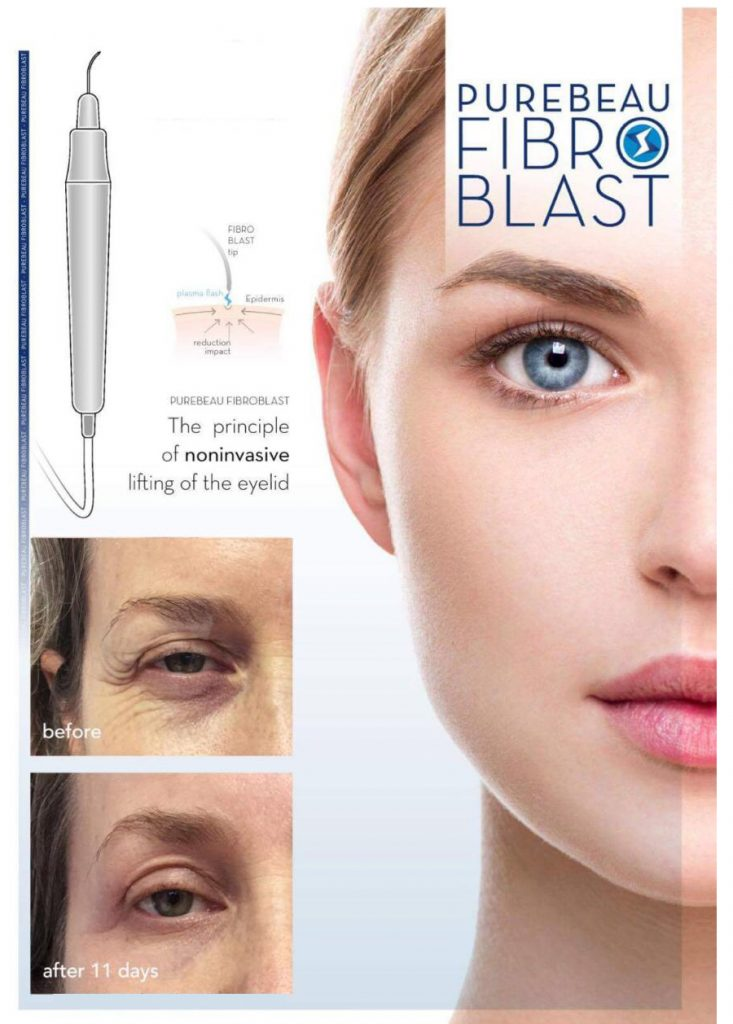 Marketing fibroblast